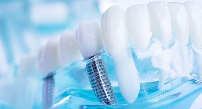 dental implants Harley Street