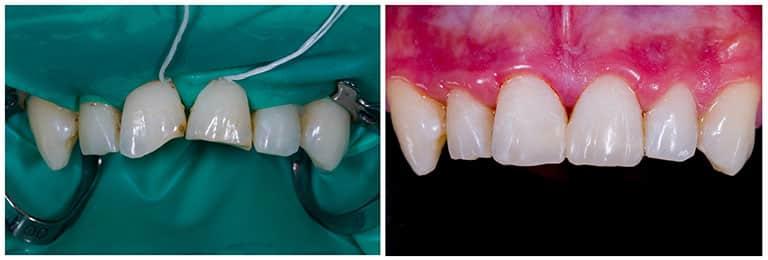 Composite bonding before and after 1 - Smile Works Dental
