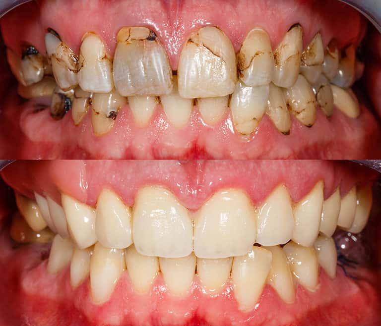 Composite bonding before and after 2 - Smile Works Dental