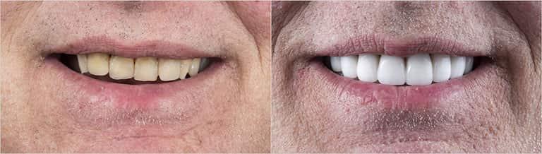 Dental veneers treatment before & after - Smile Works Dental
