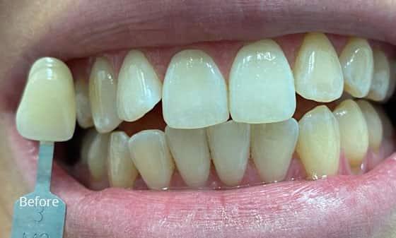 before teeth whitening 2