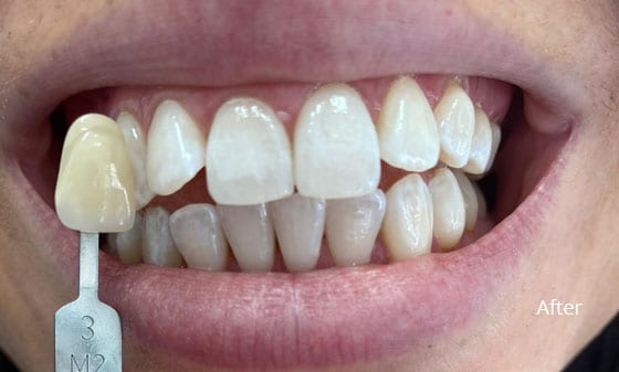 after teeth whitening 2