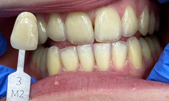 before teeth whitening 3
