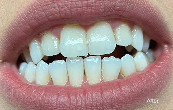 after teeth whitening 10