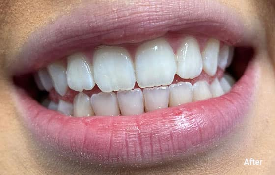 after teeth whitening 8