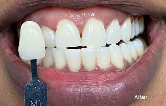 after teeth whitening 9