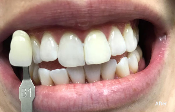 after teeth whitening 6