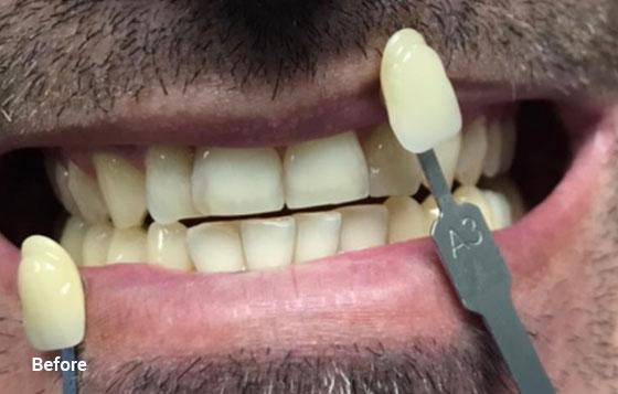 before teeth whitening 5