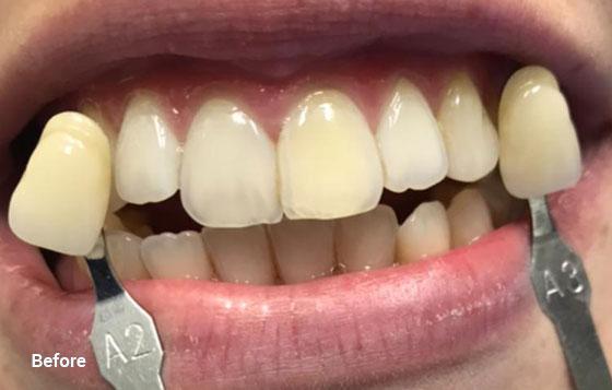 before teeth whitening 6