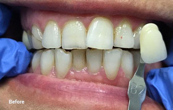 before teeth whitening 7