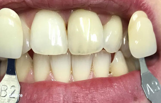 before teeth whitening 8