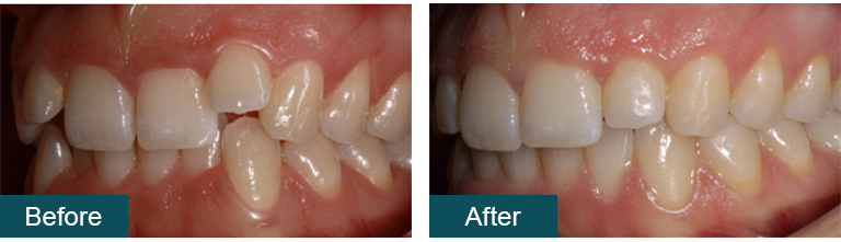 Invisalign before after1