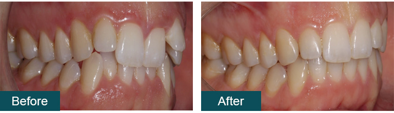 Invisalign before after 2