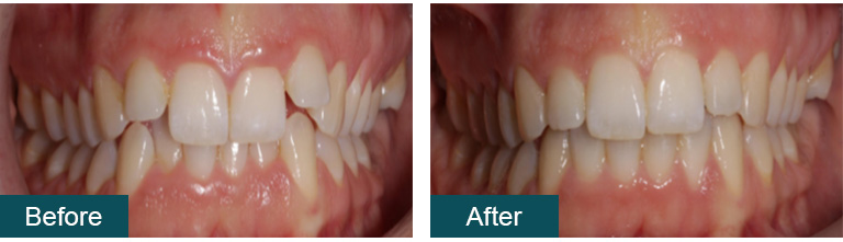 Invisalign before after3