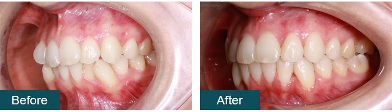 Invisalign Before and After 6 - Smile Works Dental