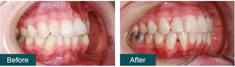 Invisalign Before and After 8 - Smile Works Dental