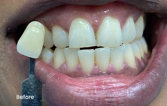 before teeth whitening 9