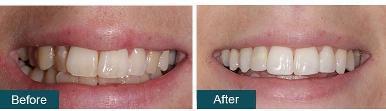 Invisalign Before After 3 - Smile Works Dental