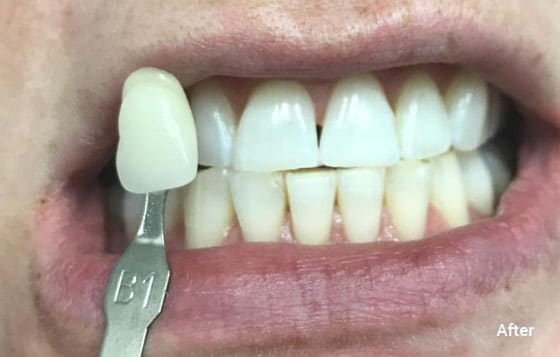 after teeth whitening 7