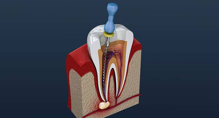 root canal treatment London
