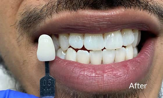 Teeth Whitening - After 5