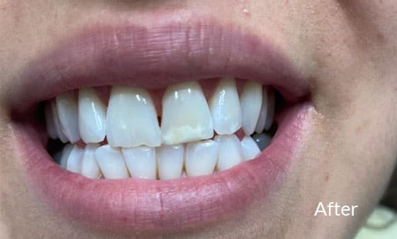Teeth Whitening - After 6