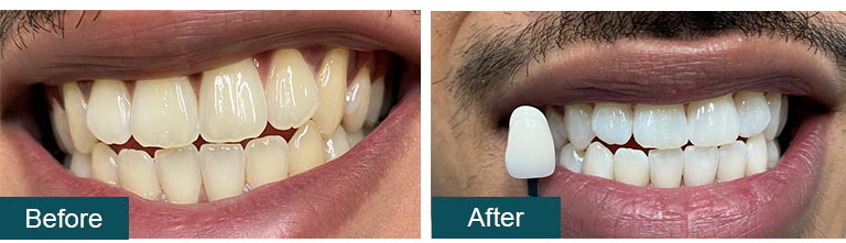 Teeth Whitening Before After 1 - Smile Works Dental