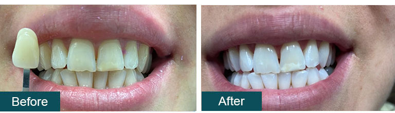 Teeth Whitening Before After 2 - Smile Works Dental