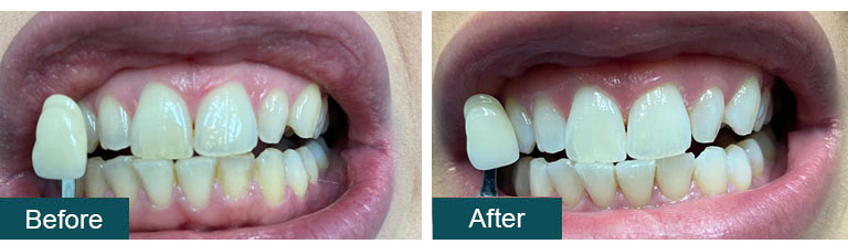 Teeth Whitening Before After 3 - Smile Works Dental