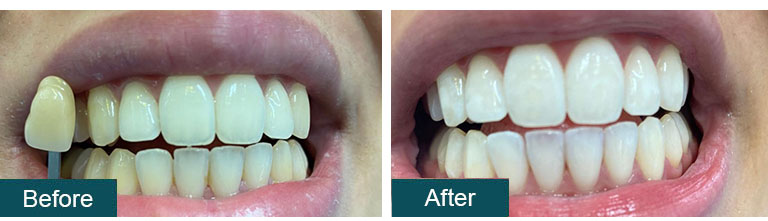 Teeth Whitening Before After 4 - Smile Works Dental