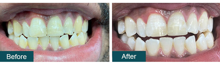 Teeth Whitening Before After 5 - Smile Works Dental