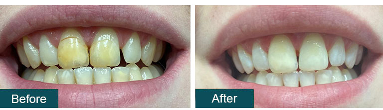 Teeth Whitening Before After 6 - Smile Works Dental