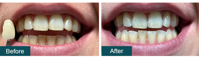 Teeth Whitening Before After 7 - Smile Works Dental