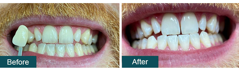 Teeth Whitening Before After 8 - Smile Works Dental
