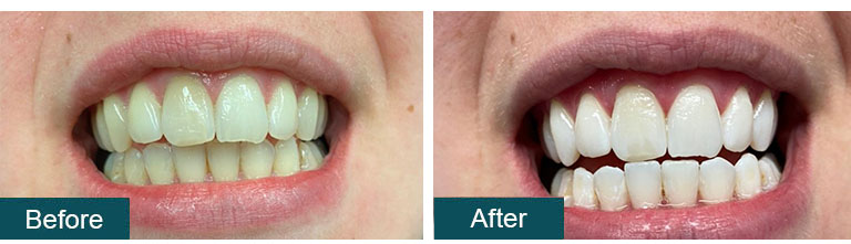 Teeth Whitening Before After 9 - Smile Works Dental