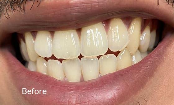 Teeth Whitening - Before 1