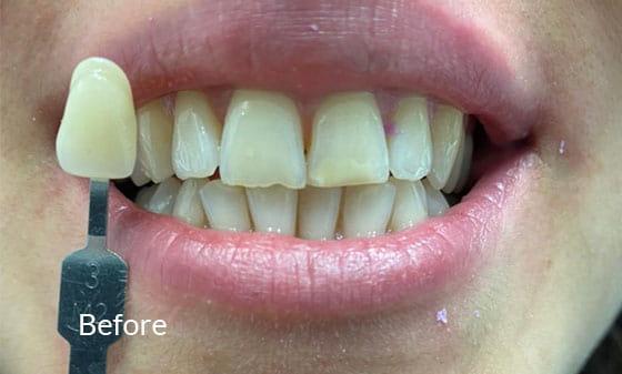 Teeth Whitening - Before 2