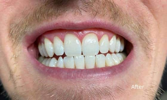 after teeth whitening 1