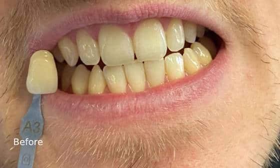 before teeth whitening 1