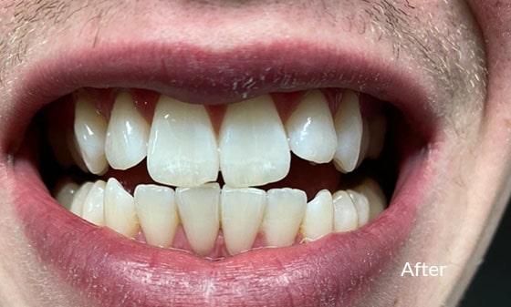 Teeth Whitening  After - Smile Works Dental