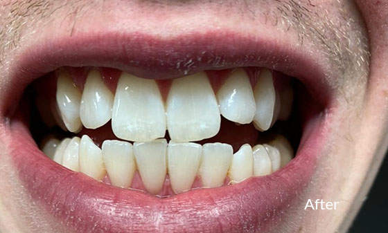 Teeth Whitening with Veneers After - Smile Works Dental