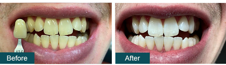 Teeth Whitening with Veneers Before After - Smile Works Dental