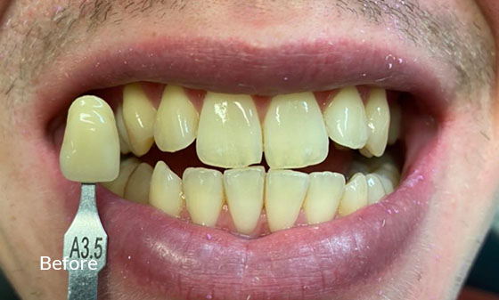 Teeth Whitening with Veneers Before - Smile Works Dental