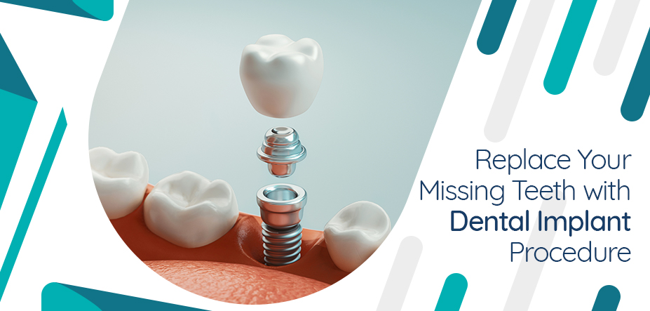 Replace Your Missing Teeth with Dental Implant Procedure