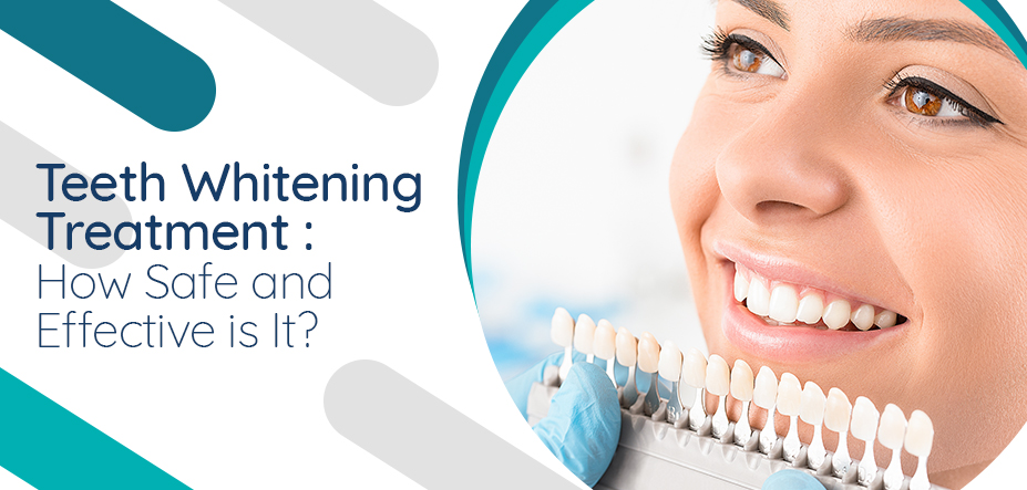 Teeth Whitening Treatment: How Safe and Effective is It?