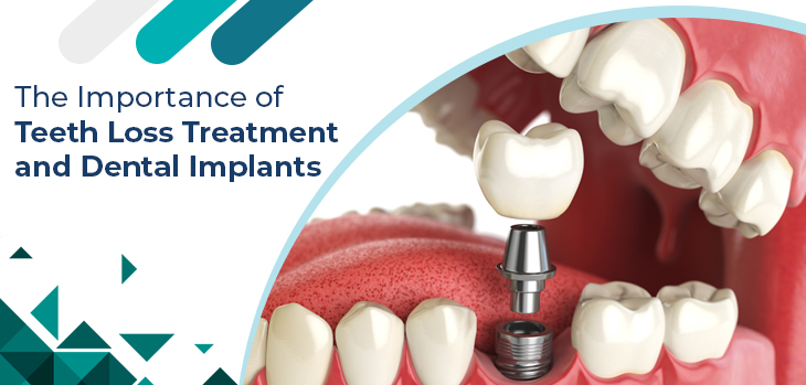 The Importance of Teeth Loss Treatment and Dental Implants
