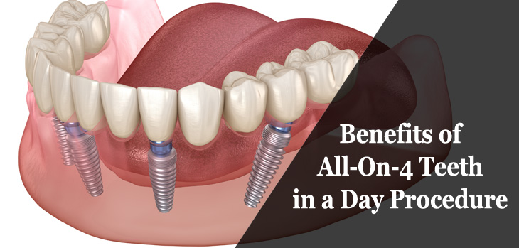 4 Benefits of All-On-4 Teeth-in-a-Day Procedure