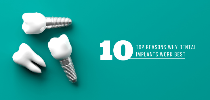 10 Top Reasons Why Dental Implants Work Best