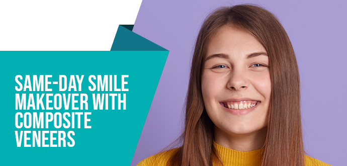 Same-day smile makeover with composite veneers