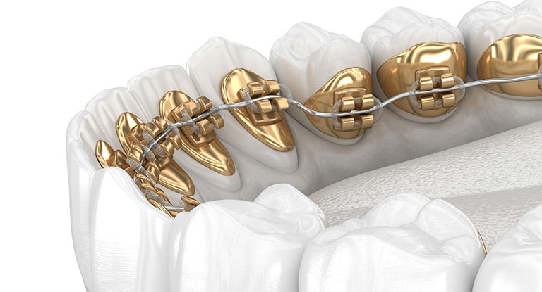 lingual braces design